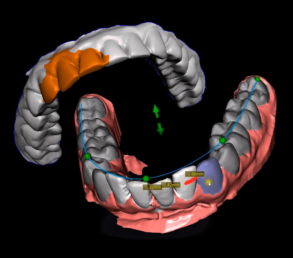 Fluxos Digitais em Odontologia em Softwares Abertos Modelo dental