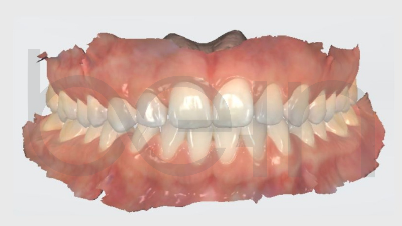 imagem escaneamento intraoral